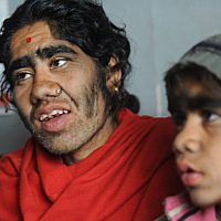 Nepal Family Undergoes Laser Hair Removal Together